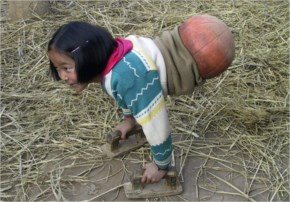 She lost both her legs in a horrific car accident in 2000, when she was only four years old. Growing up in a rural area of China's southwestern Yunnan province, prosthetic legs weren't so easy to com