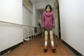 After receiving her new legs, she could no longer attend a normal school along with her peers to complete her education, but she found alternatives. She even joined the nation's first swimming club f