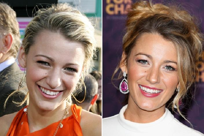 Blake Lively Before And After Plastic Surgery Laughspark Com